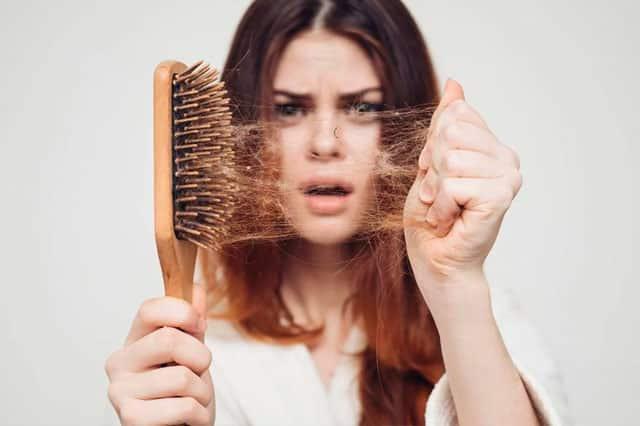 5 razones de la caída del cabello de forma prematura